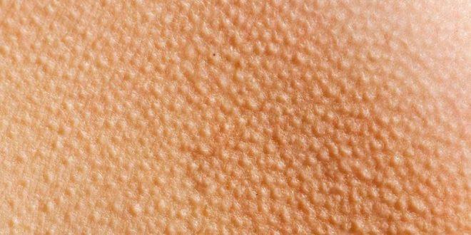 راهکارهای برای رفع حالت پوست مرغی بدن