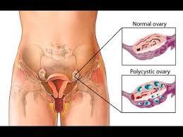 علایم سندرم تخمدان پلیکیستیک