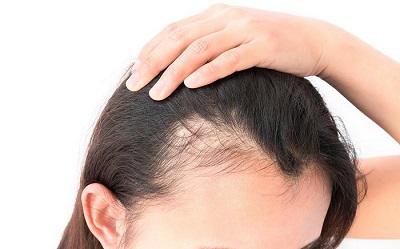 نازک شدن موها و راهکارهایی برای مقابله با آن